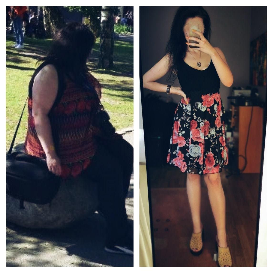 po lewej stronie pacjentka przed pierwszą wizytą. Po prawej ta sama pacjentka po tym jak schudła 73kg.